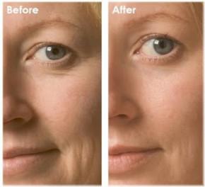 Perle antirughe viso Khanya - Concentrato per viso e occhi con Q10, contro l'invecchiamento cutaneo