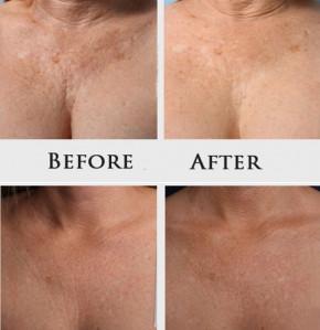 Perle effetto lifting di Khanya - concentrato per viso e décolleté, contro i segni dell'invecchiamento cutaneo,